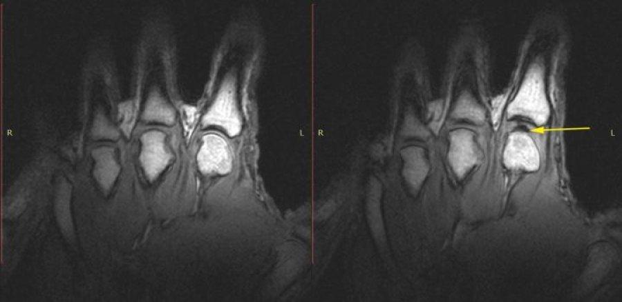 관절 MRI이미지알버타대